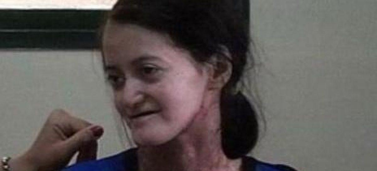 Tristeza. Falleció Virginia Gómez, la riojana con piel de cristal