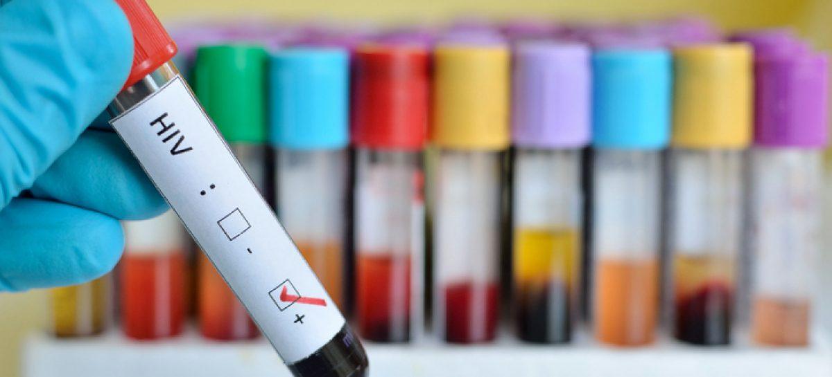 1200 PERSONAS LUCHAN CONTRA EL HIV EN LA RIOJA: 50 SE DETECTARON ESTE AÑO