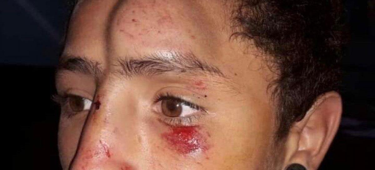 Menor salvajemente golpeado por circular en bici por la vereda