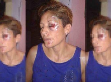 Inseguridad extrema. Motochorros y otro salvaje ataque a una mujer