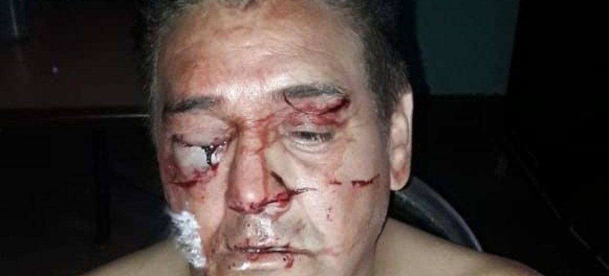 Fue agredido brutalmente y perdió un ojo: dos detenidos